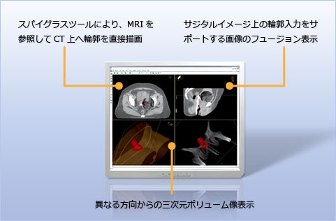 Multimodality imaging environment