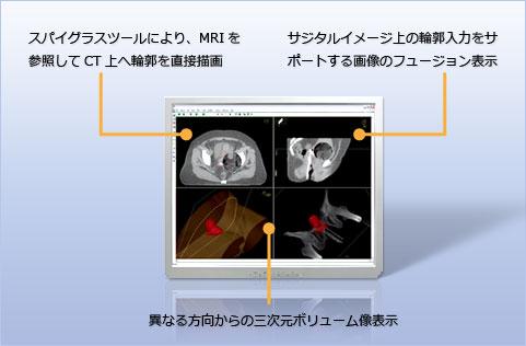 Multimodality imaging environment