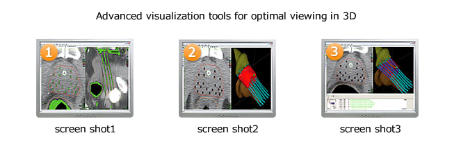 Advanced visualization tools for optimal viewing in 3D
