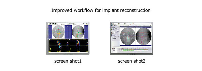 Improved workflow for implant reconstruction