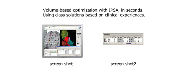 Volume-based optimization with IPSA, in seconds. Using class solutions based on clinical experiences.