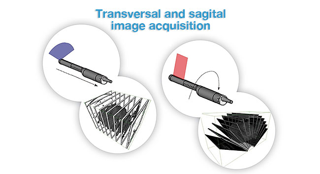 transverisal and segital image acquisition